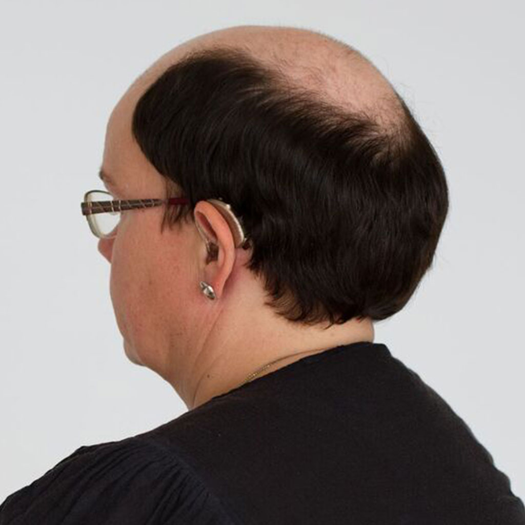 Top Extension Customized Hairpiece Excessive Hair Loss Or Bald Spots