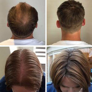 Hair solution for hair loss example - man and woman