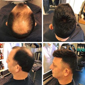 Solution for hair loss men