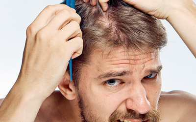 Hair Loss Solution Men