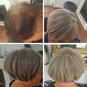 Hair loss solution - female before after