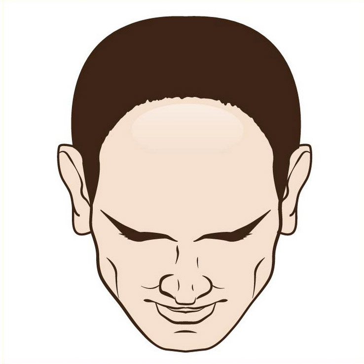 Male hair loss front