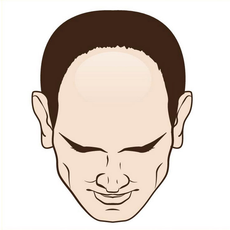 Male hair loss front moderate
