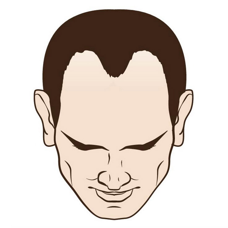 Male hair loss receding hairline moderate