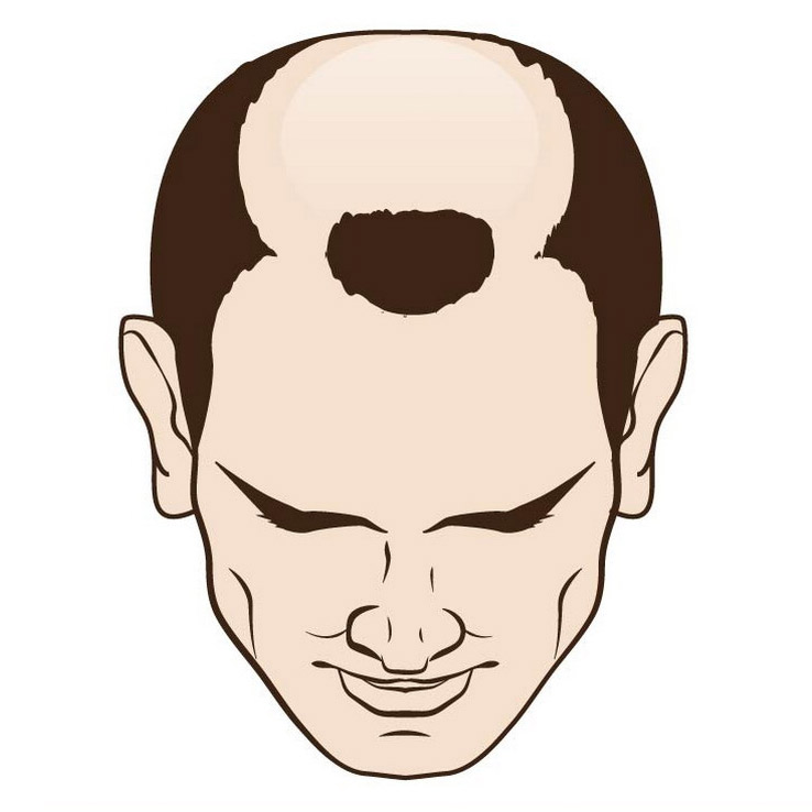 Male hair loss top