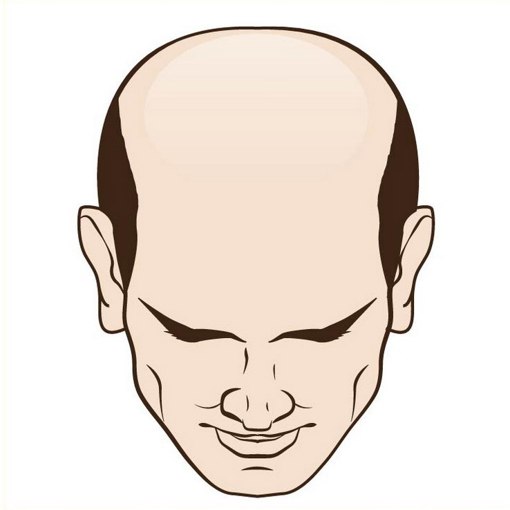 Male hair loss top excessive