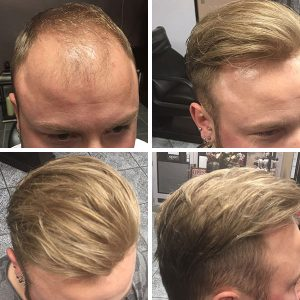 Mens hair piece - before/after