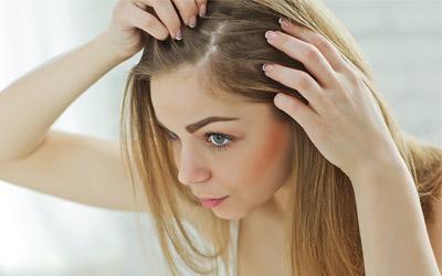 hair loss solution women uk