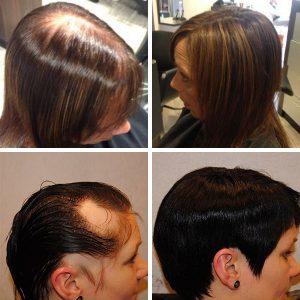 vrouw haarstuk kale plekken dunner wordend haar